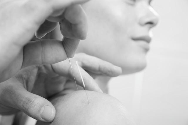 Dry needling behandling