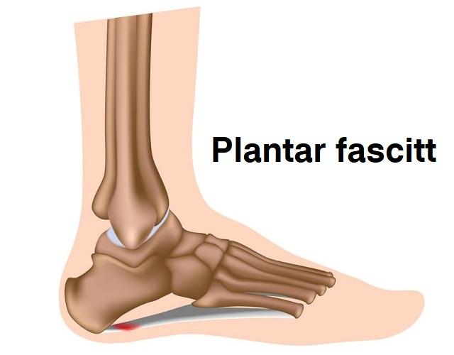 Illustrasjon av plantar fascitt, markert der smerten er mest intens under foten