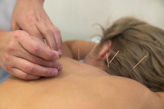 Dame får akupunktur for fibromyalgi_299104904