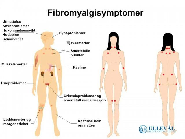 Fibromyalgi symptomer oversikt