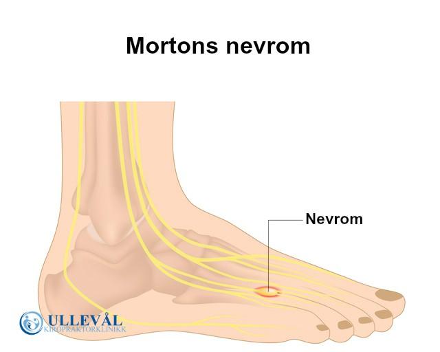 95a954b5 Mortons nevrom kan du bli kvitt | Ullevål Kiropraktorklinikk