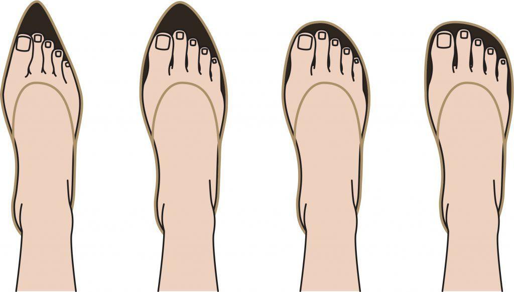 smale sko kan forverre hallux valgus og mortons nevrom