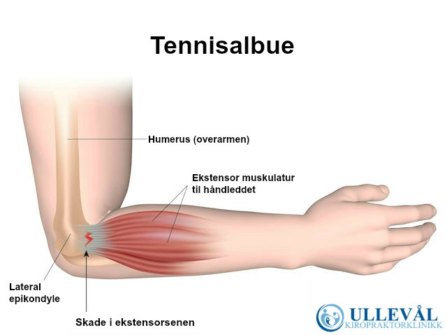 Tennisalbue anatomi ullevål kiropraktorklinikk