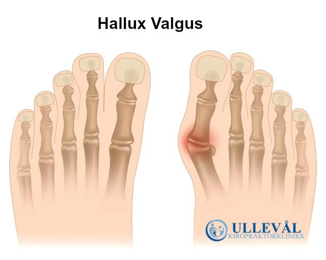anatomi av hallux valgus ullevål kiropraktor