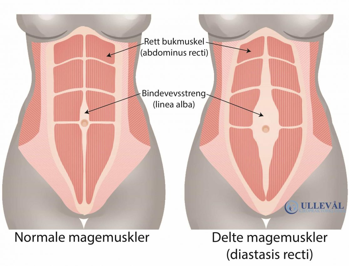 delte magemuskler operasjon