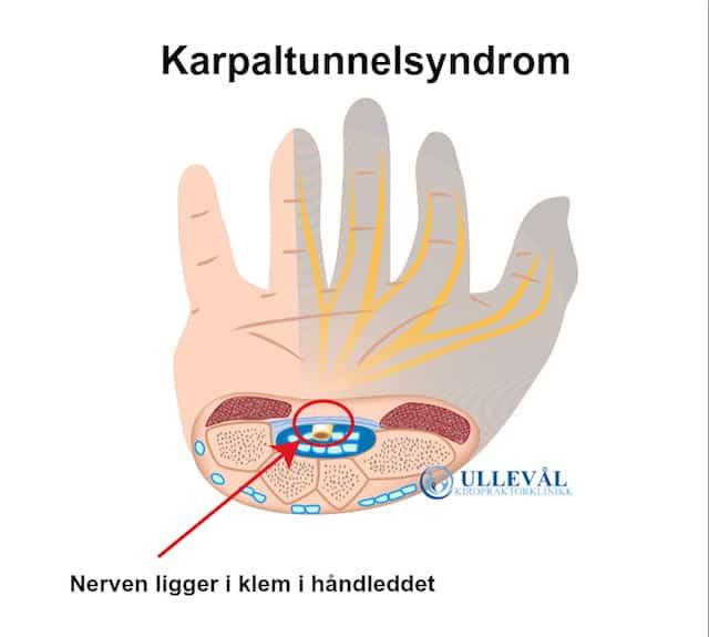 karpaltunnelsyndrom gravid behandling