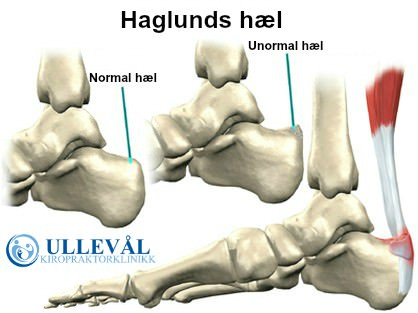 infromativt bilde som beskriver haglunds hæl