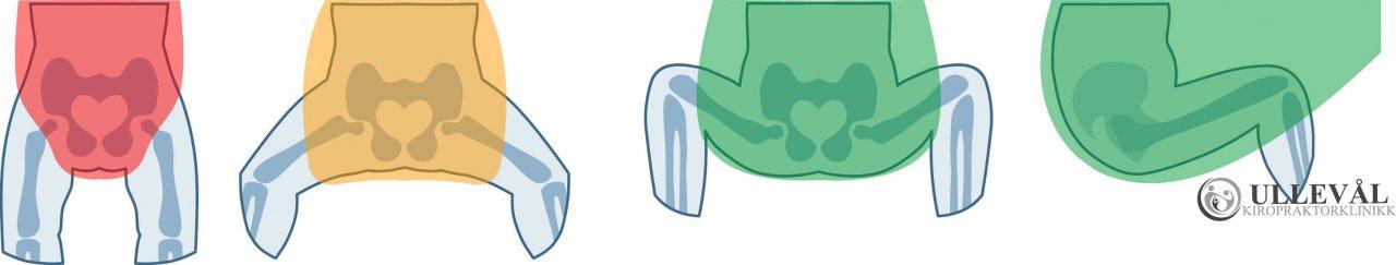 hofteleddsdysplasi riktig bærestilling