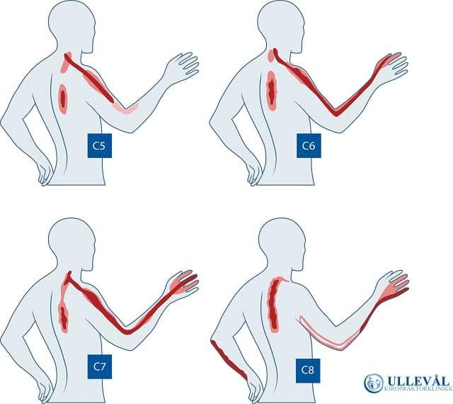Prikking i fingrene fra prolaps i nakken