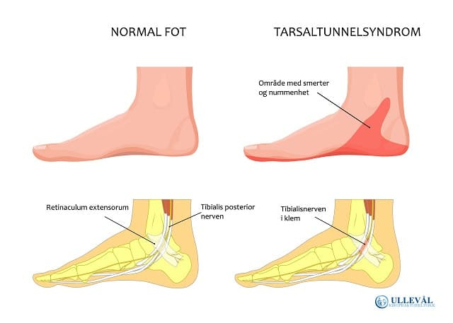 smerter under foten fra nerve i klem i ankelen