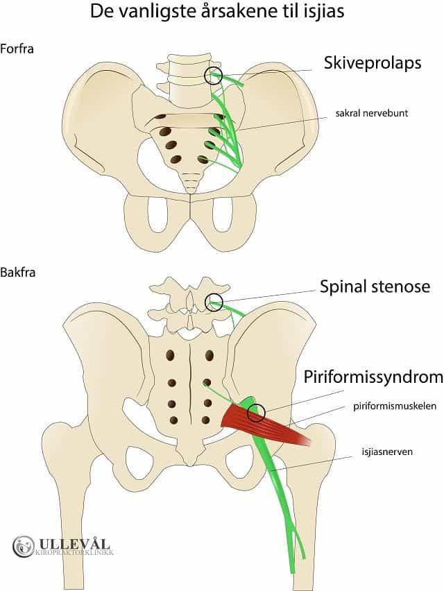 årsaker til isjias - skiveprolaps, spinal stenose og piriformissyndrom