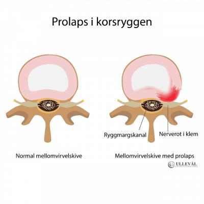 Image: Alt du bør vite om prolaps i korsryggen