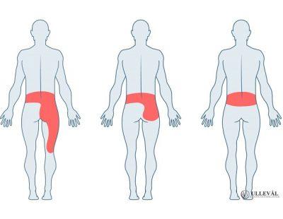 Image: Hjemmeøvelser for prolaps