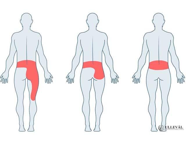illsustrasjon av smertene som kan oppstå ved spondylolistese