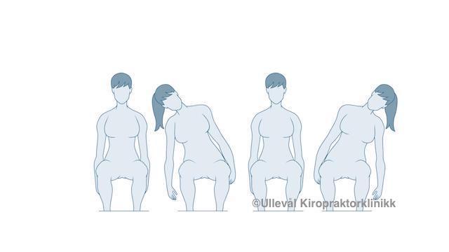 øvelser for prolaps i ryggen