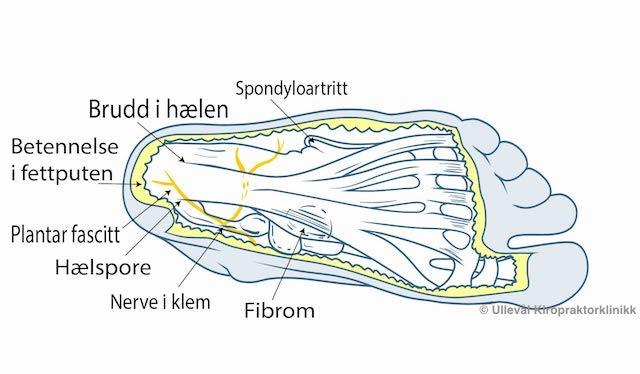 Bilde av typiske smerteområder under foten