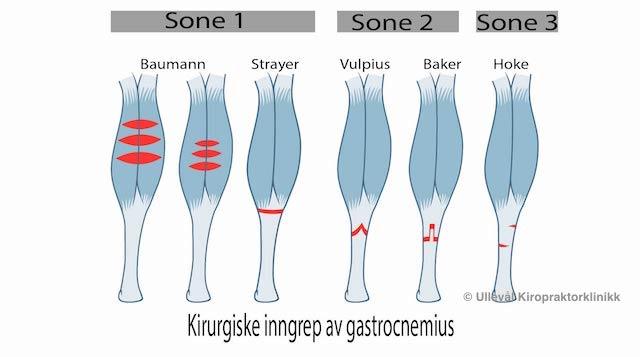 Illustrasjon av kirurgiske ingnrep gjort i leggmuskel