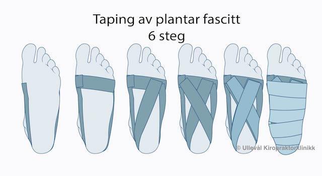 illustrasjon av hvordan man taper for plantar fascitt