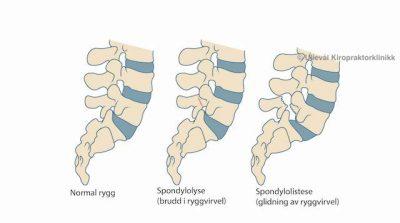 Image: Behandling og undersøkelse av spondylolistese