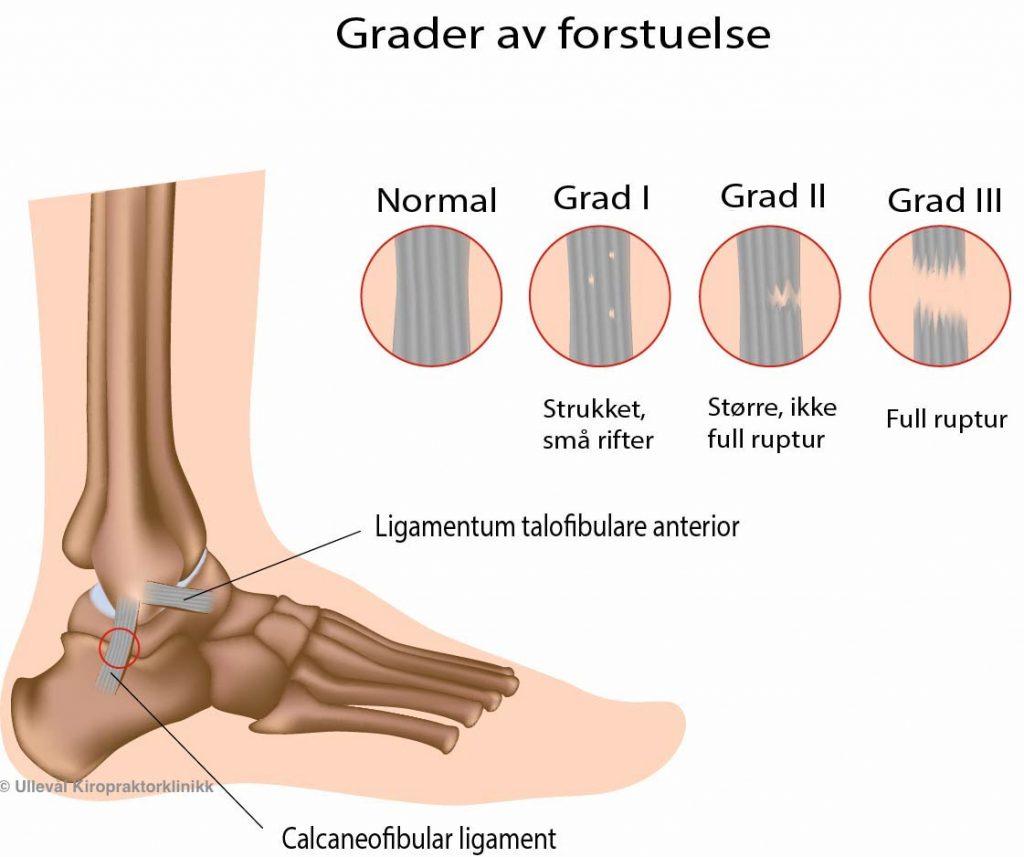 fot som viser skade etter overtråkk