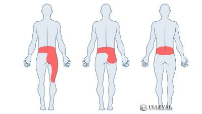 Image: Stor Guide om piriformissyndrom