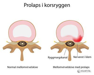 Image: Vanlige spørsmål om prolaps i korsryggen
