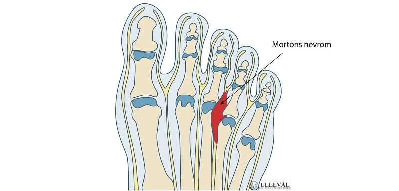 illustrasjon av mortons nevrom