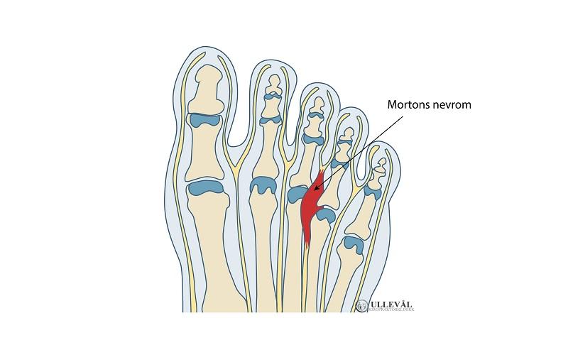 illsutrasjon av mortons nevrom
