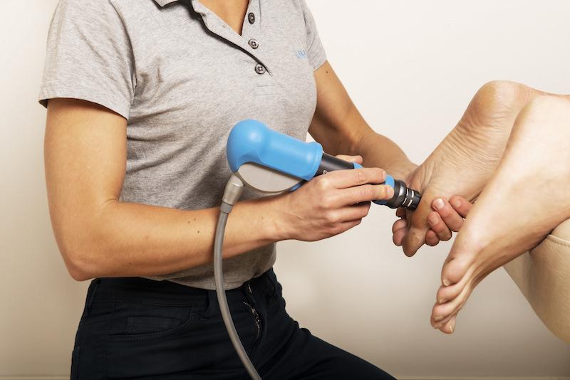 trykkbølgebehandling for pasient med mortons nevrom