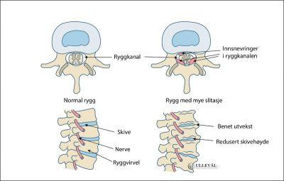 Image: Hva er spinal stenose?