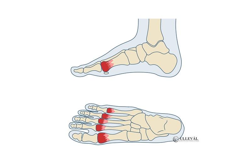 Smerter i flere forfotsben kalles metatarsalgi