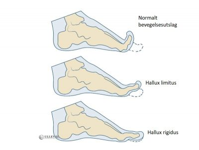 Image: Stivhet i stortå - Hallux limitus og rigidus