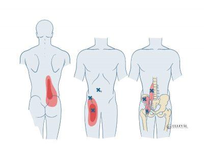 Image: <thrive_headline click tho-post-11972 tho-test-192>Psoas Major: Den mest misforståtte hoftebøyeren?</thrive_headline>