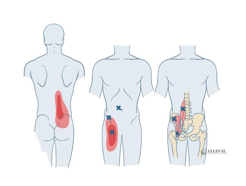 iliopsoas-muskelen og triggerpunkter