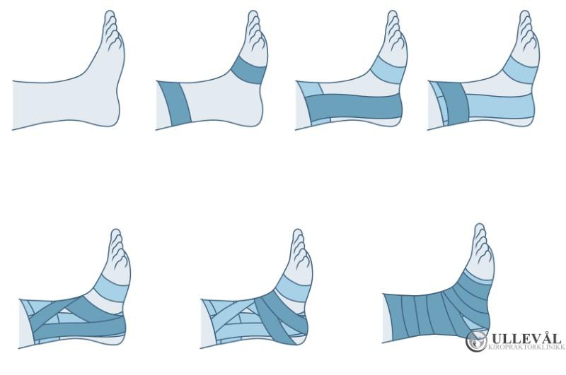 visuell visning av taping for stabilisering av ankel